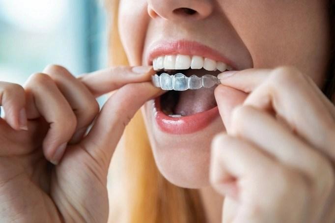 Benefits of Invisalign Treatment