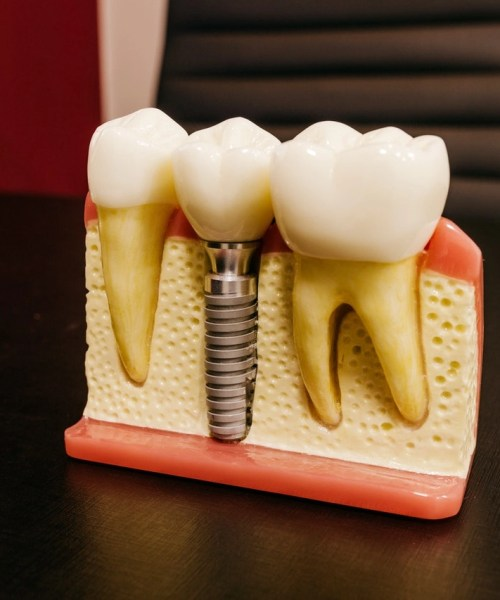 dental implant ilkley