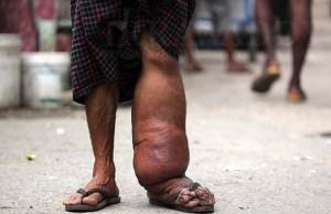 ဆင်ခြေထောက်ရောဂါဖြစ်နေသူ(ဓာတ်ပုံ – ဂျေပိုင်/ ဧရာဝတီ)
