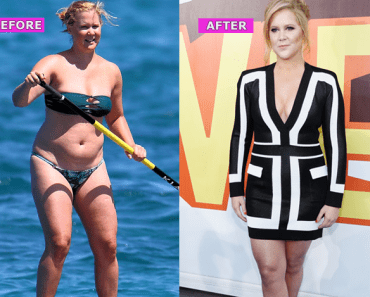 Amy Schumer Weight Loss