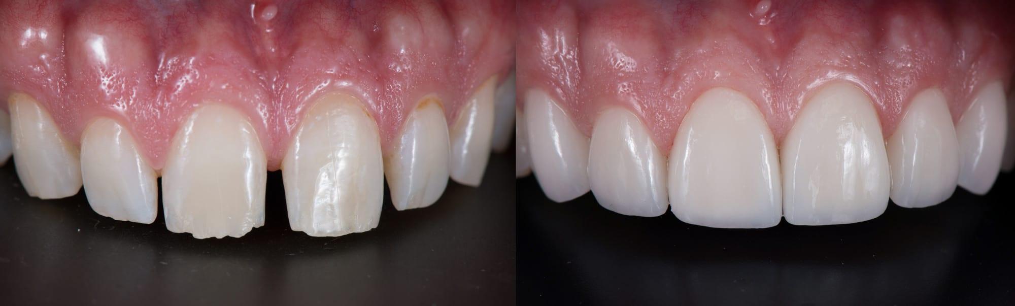 veneers on upper front teeth
