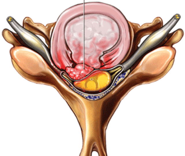 What Is A Herniated Or Bulging Disc