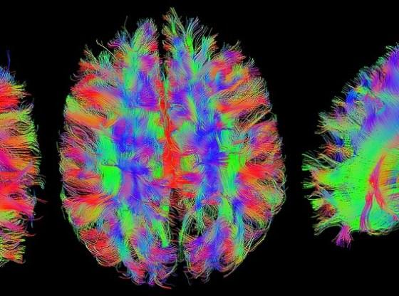 Understanding Neuromarketing