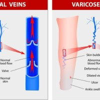 Think there's NOTHING you can do about varicose veins? Think again!