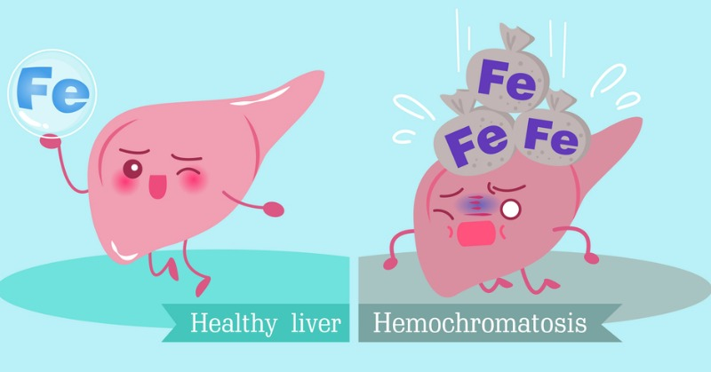 18 Signs of Hereditary Hemochromatosis and Iron Overload | Butter Nutrition