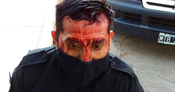 Un comisario de El Galpón resultó herido al intervenir en una gresca callejera