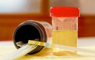 How Much Does Urine Drug Test Cost?