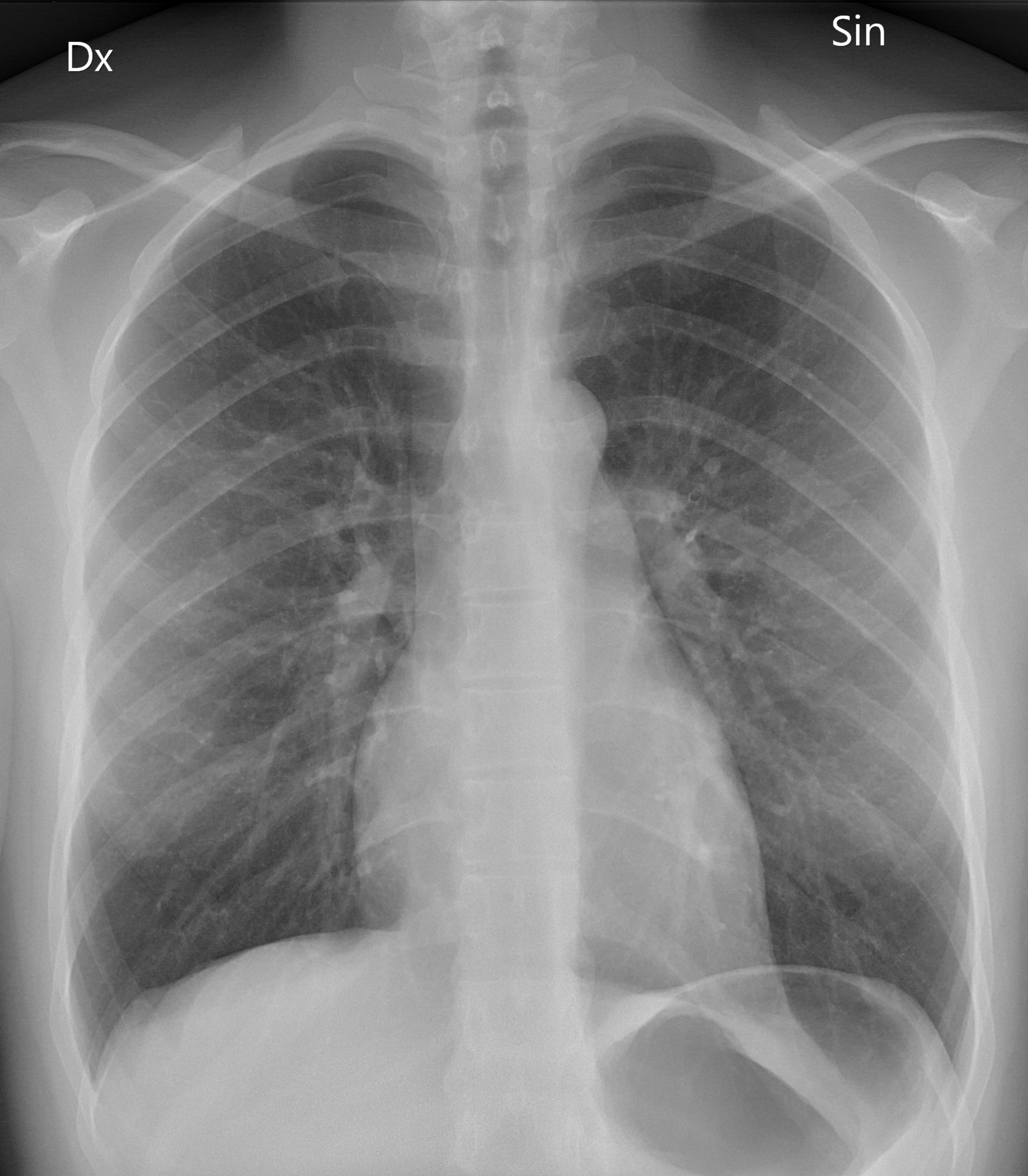 Normal Chest Xray 2
