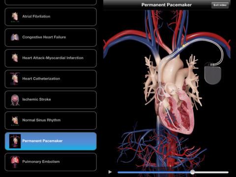 Servier lance l'application mobile Cardiological