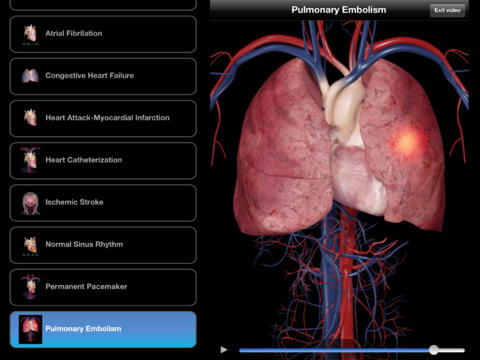 Servier lance l'application mobile Cardiological