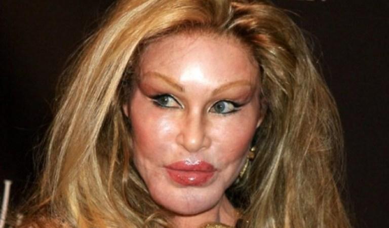 """Kocasına Güzel Görünmek Uğruna Bir Düzine Estetik Operasyon Geçiren """"Kedi Kadın"""""""