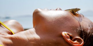 Do you have a bad sunburn? Eight Ways to Treat and Relieve Your Pain