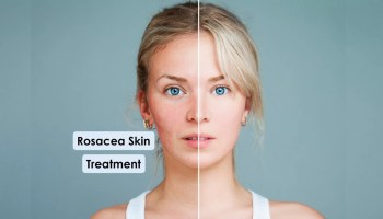 How-To-Deal-With-The-Rosacea-Skin-Problem.