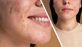 Fungal acne vs vulgaris acne what is the difference and how to remove acne