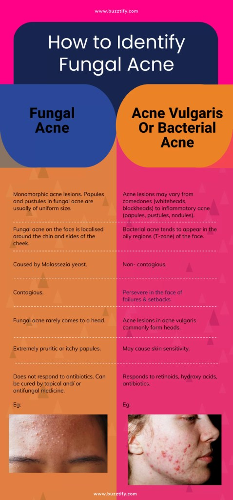 Fungal Acne on Face: Causes, Treatments, Symptoms