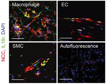 Expression of Na-Cl co-transporters and conventional IL18 receptors in macrophages, endothelial cells, and smooth muscle cells from atherosclerotic lesions.