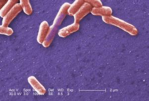E. coli (pictured here) is one of the many species of bacteria commonly found in the human gut.