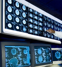Glioblastoma (GBM) is the most aggressive primary brain cancer and very drugs have been approved to treat it.