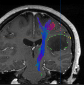 An fMRI map showing the relationship of critical brain structures in relation to a brain tumor.