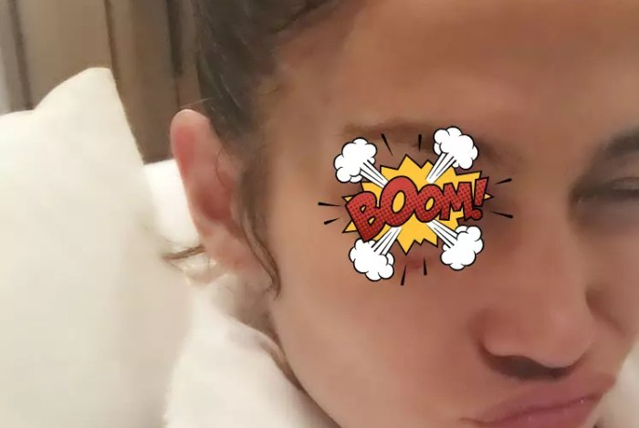 The Flying Chancla Report: Jennifer Lopez Has a Black Eye, But She Ain't Mad
