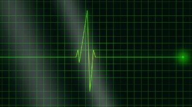 Heartbeat Graph, Good Health