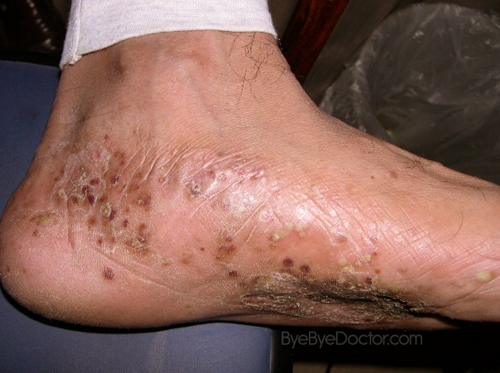 Dyshidrotic Eczema – Pictures, Causes, Home Remedies ...