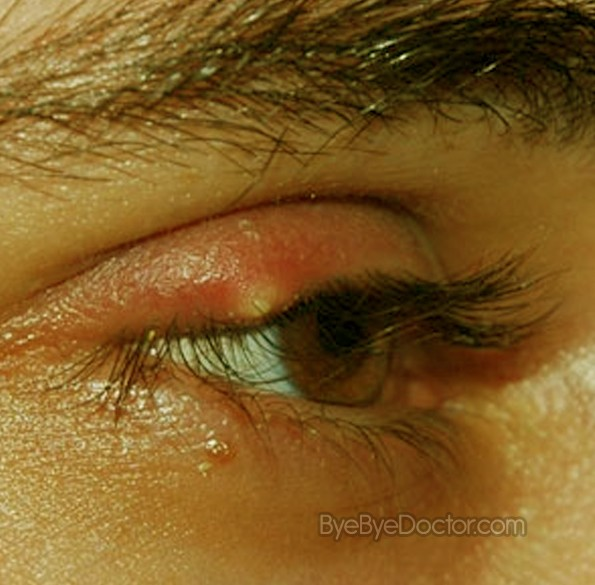 What Causes Chalazion