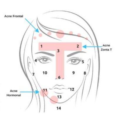 Acne- Localização e Significados (1)
