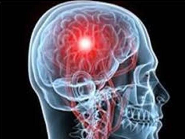 موبائل فون کے استعمال سے کان کے اوپر دماغی حصے میں ٹیومر ہو سکتا ہے۔ فوٹو : فائل