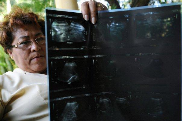 Iris Rodríguez, una víctima del