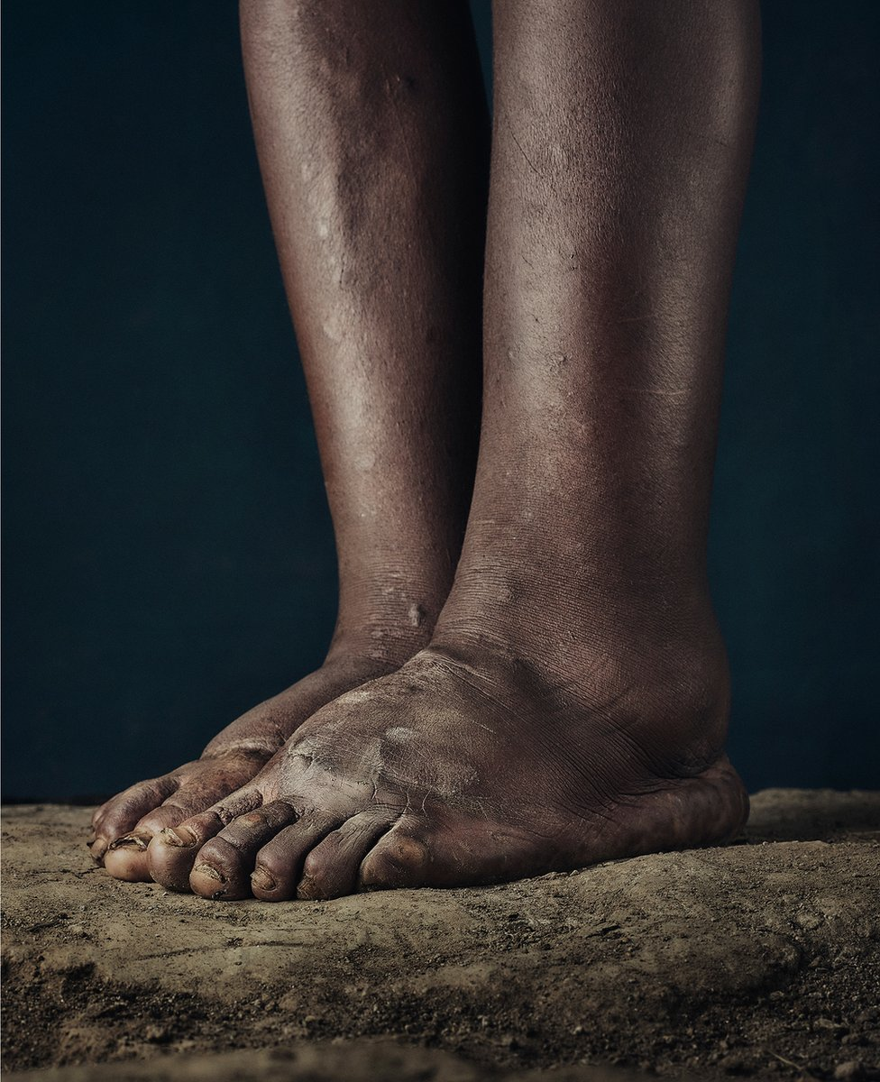 The feet of someone who suffers from podoconiosis