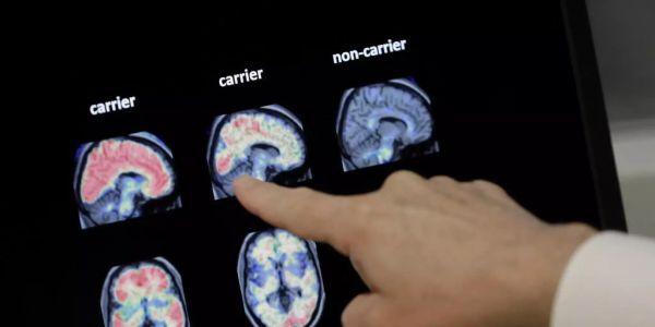 Alzheimer verbreitet sich ähnlich wie Infektion