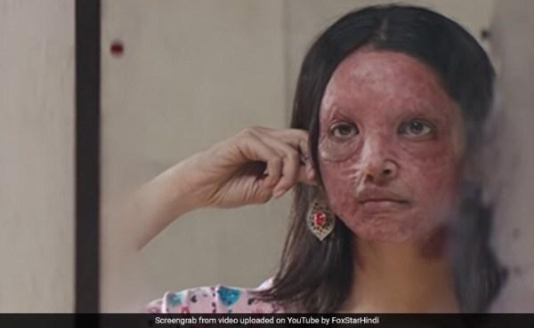 Chhapaak Trailer: Deepika Padukone