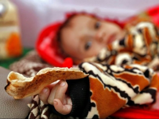 A malnourished Yemeni child receives treatment at a hospital in the capital Sanaa. PHOTO: AFP