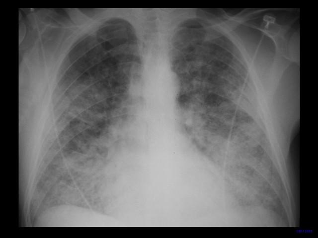 Whxr Jms Cpd Chest 2 Slide17 Acute Pulmonary Oedema