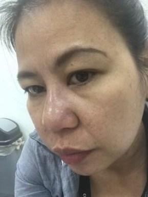 pimple kuno