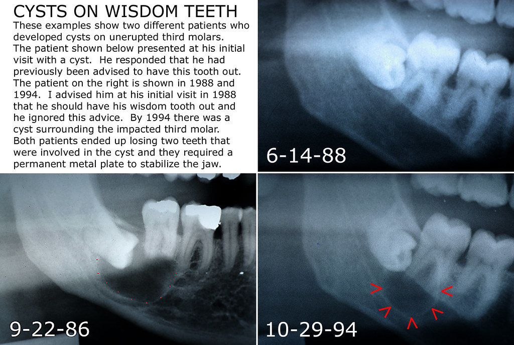 Pitchers Cyst Under Wisdom Tooth