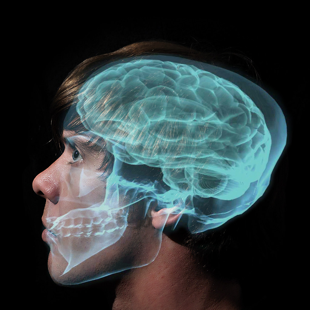 O Is For Occipital Lobe Day 114 Of 365 Not Only