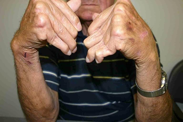 Fight Arthritis Pain Naturally