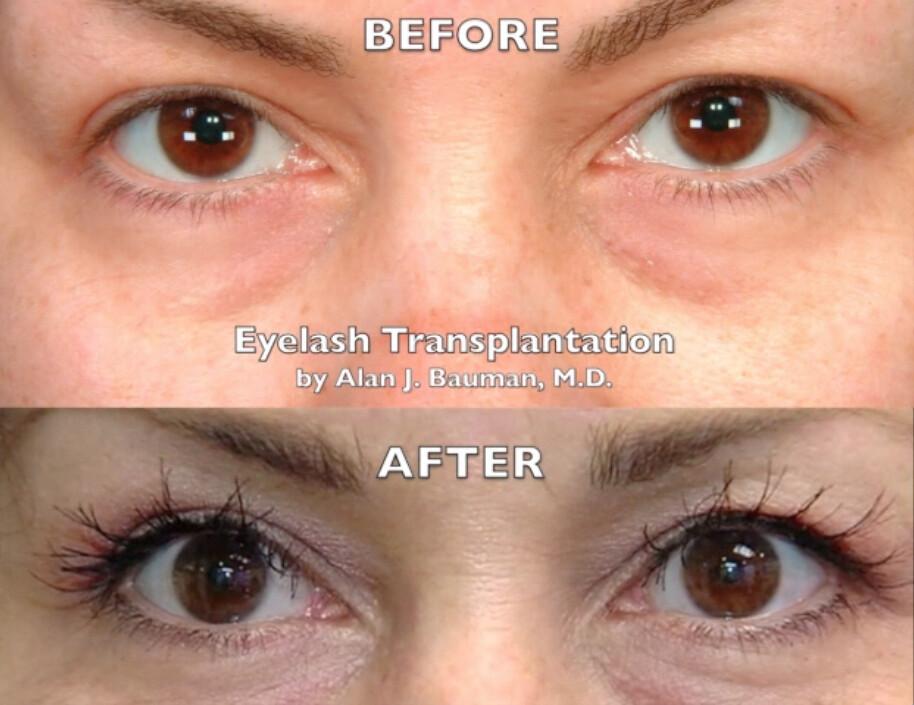 Eyelash Transplant Patti Before After 02 Eyelash