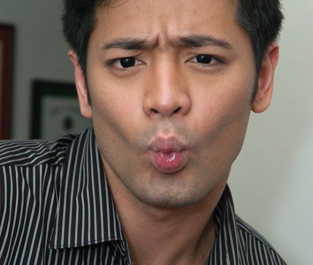 Dr Hayden Kho Jr Funny Face By Micamyx