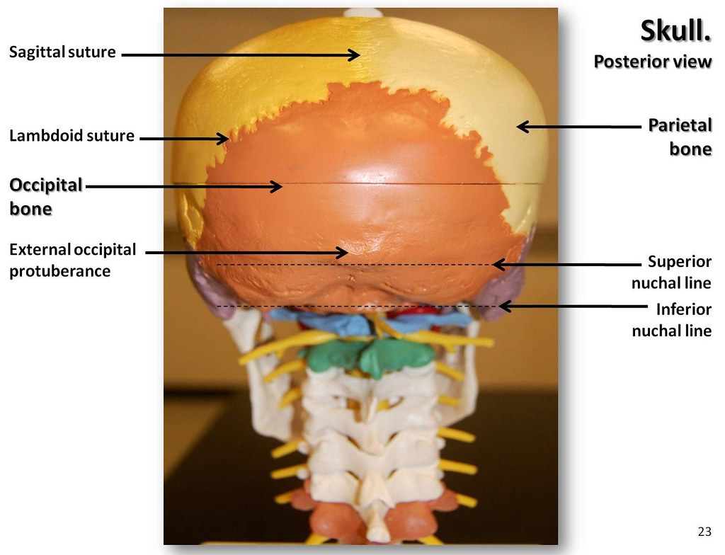 Multi Colored Skull Posterior View With Labels