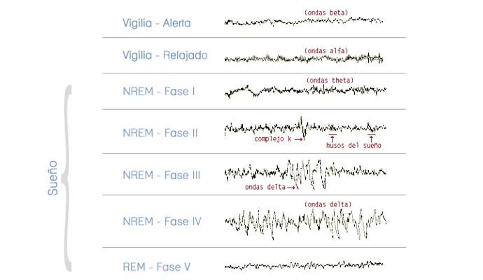 Gráfica de la actividad cerebral durante la vigilia y el sueño.