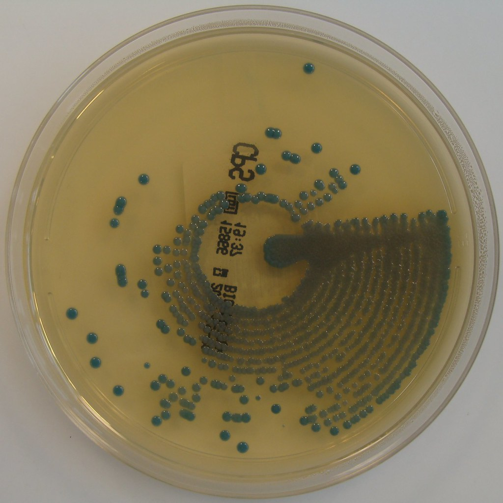 Klebsiella Pneumoniae On ChromID CPS Agar Klebsiella