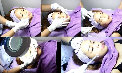 Ayesha Heart Anti-Acne Plasma Facial Treatment at Skin Philosophie
