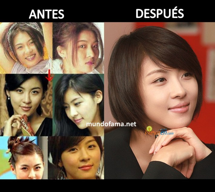 korean actress before and after plastic surgery actrices c… | flickr
