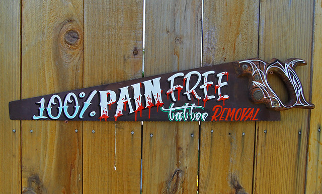100% PAIN FREE TATTOO REMOVAL | Flickr - Photo Sharing!