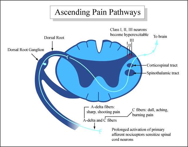 Ascending Pain Pathways | Diagram showing how pain moves