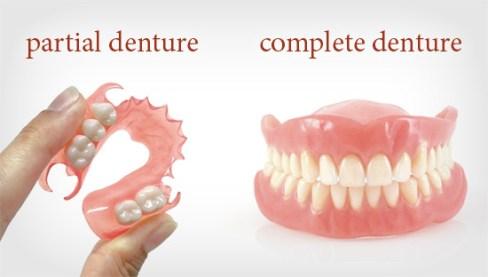Penggunaan Gigi Palsu- Global Estetik Dental Care