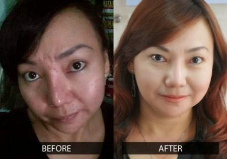 Obat pengecil pori pori wajah